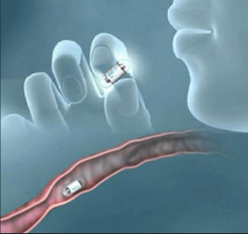 الكبسولة التشخيصية واستخدامتها