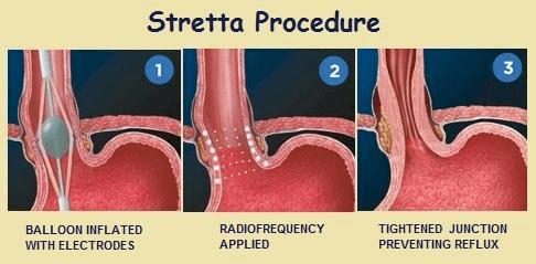 ارتجاع المرئ و عملية الستريتا